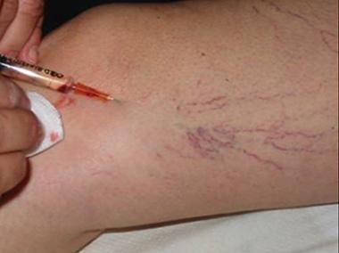 Varicosity di vene che stanno in 20 anni